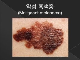 피부암, 조기 발견이 쉬운 악성 흑색종