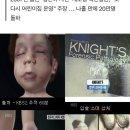 추적 60분' 울산 어린이집 사망 '성민이 사건', 41만 명의 청원. 채원장